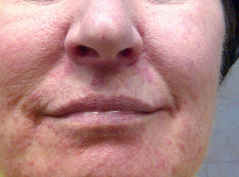 leichte Periorale Dermatitis bei einer älteren Frau